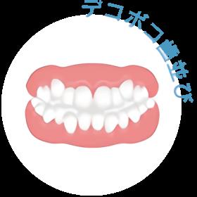デコボコの歯並び