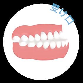 下の歯が出ている