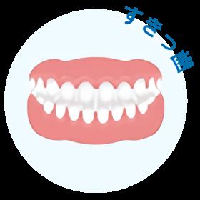 歯と歯の隙間が目立つ